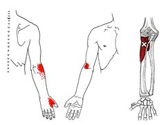 BRACHIORADIALIS TRIGGER POINT